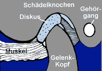Gelenkkopf und Diskus - Zusammenspiel bei CMD (cranio-mandibuläre Dysfunktion)