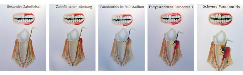 Stadien der Parodontitis