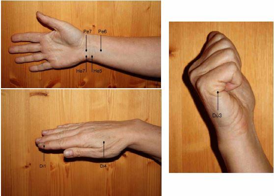 Akupressurpunkte an Arm und Hand