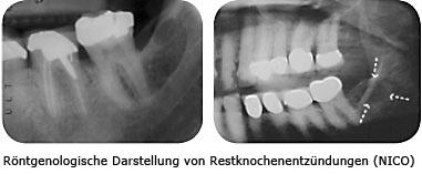 Röntgenbild von Entzündungen der Resteknochen