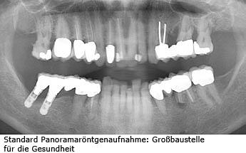 Röntgenaufnahme Mund