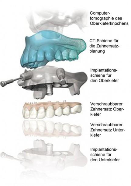 Kaskadenmodell des 3D Implantologieverfahrens