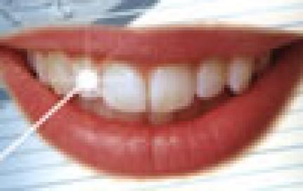 Laserbehandlung Zahnlaser