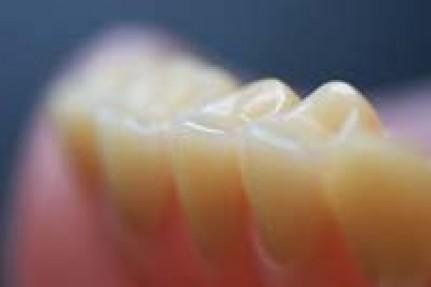 Zahnreihe im Blick