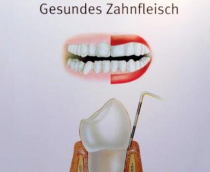 Keine Parodontitis: So sieht gesundes Zahnfleisch aus
