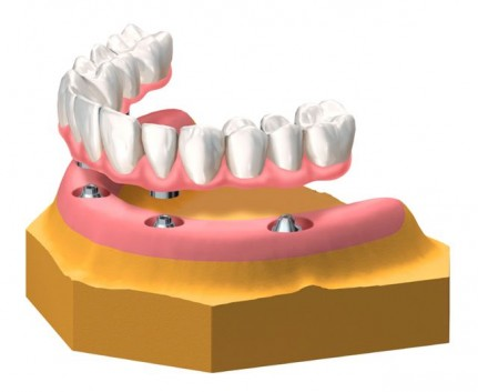 Verschraubbarer Zahnersatz am Unterkiefer