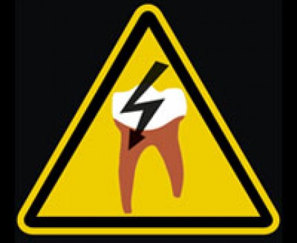 tote Zahnwurzel
