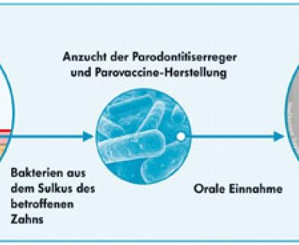 ParoVaccine Anregung des Immunsystems