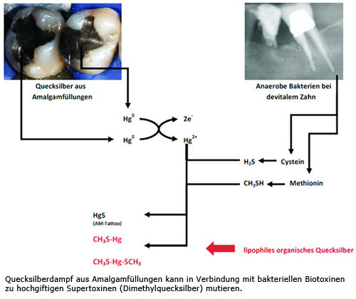 Supertoxine Quecksilber