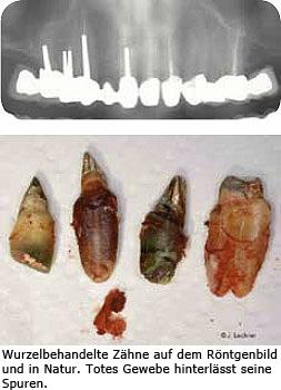 Wurzelbehandelte Zähne