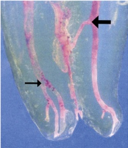 DVT (dreidimensionales Röntgenbild) zeigt eine Entzündung des umliegenden Gewebes der Wurzelkanäle auf
